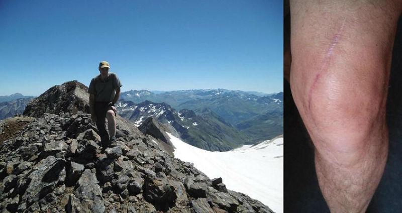 Mon genou au sommet du pic du Clot de la Hount (3289 m), devant le Vignemale. Un grand MERCI à mon chirurgien et à ma kiné.